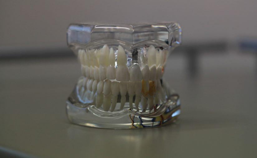 Zła droga odżywiania się to większe niedobory w jamie ustnej a także ich zgubę